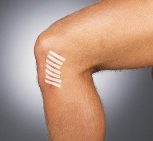 "Derma Sciences TS3100 Wound Closure Strips 1/8 x 3"" 5/pouch 50 pch/bx"